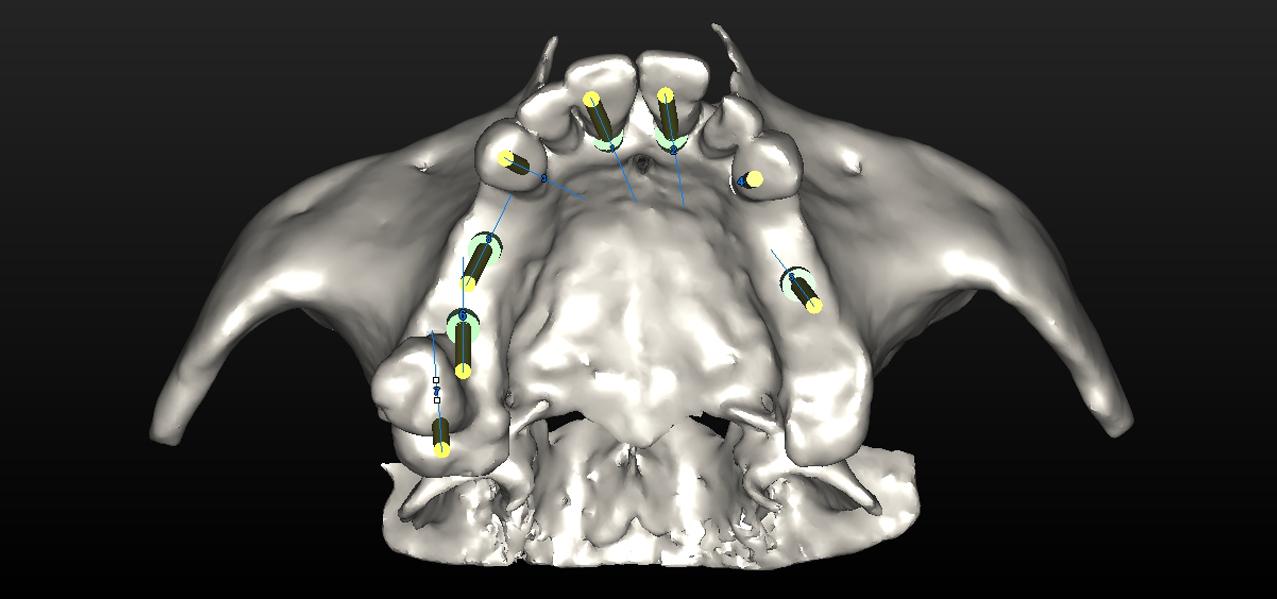 implantes en oviedo